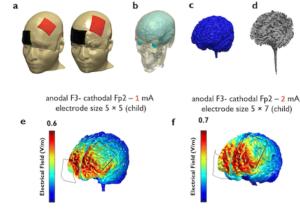 Schematic representation of transcranial direct current stimulation (tDCS)