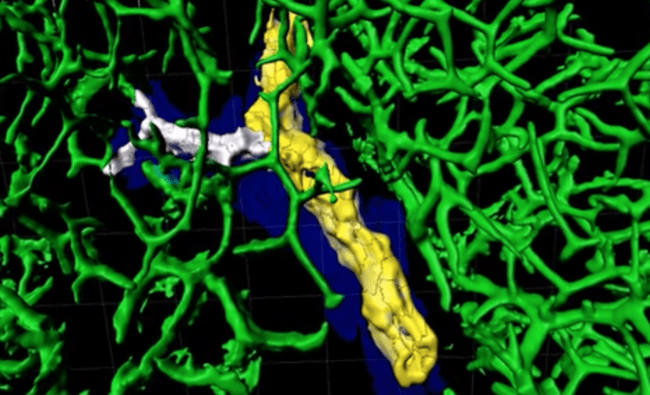 3D-Abbild cholestasebedingter Veränderungen der Gallengänge (http://vartak.org/liver/). © ifado/vartak