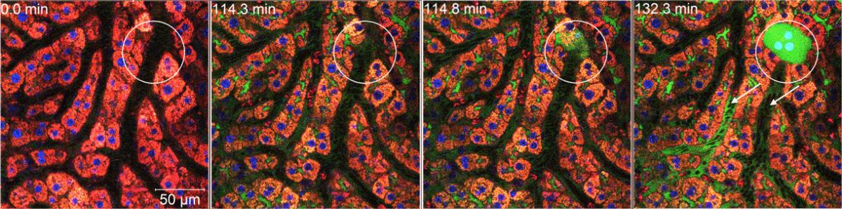 Aufnahmen aus dem Zwei-Photonen-Mikroskop zeigen den Riss der Leberzellmembran. Nach dem Riss dringt Galle (grün markiert) in eine einzelne Leberzelle ein (Kreis). Danach bricht sie in die Blutgefäße durch (Pfeile). Dieser Durchbruch ermöglicht es, den anderen Leberzellen (hier rot) zu überleben.