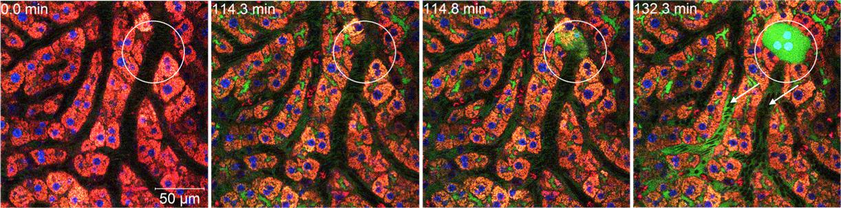 Cholestase: Riss in Lebermembran lässt Galle abfließen -