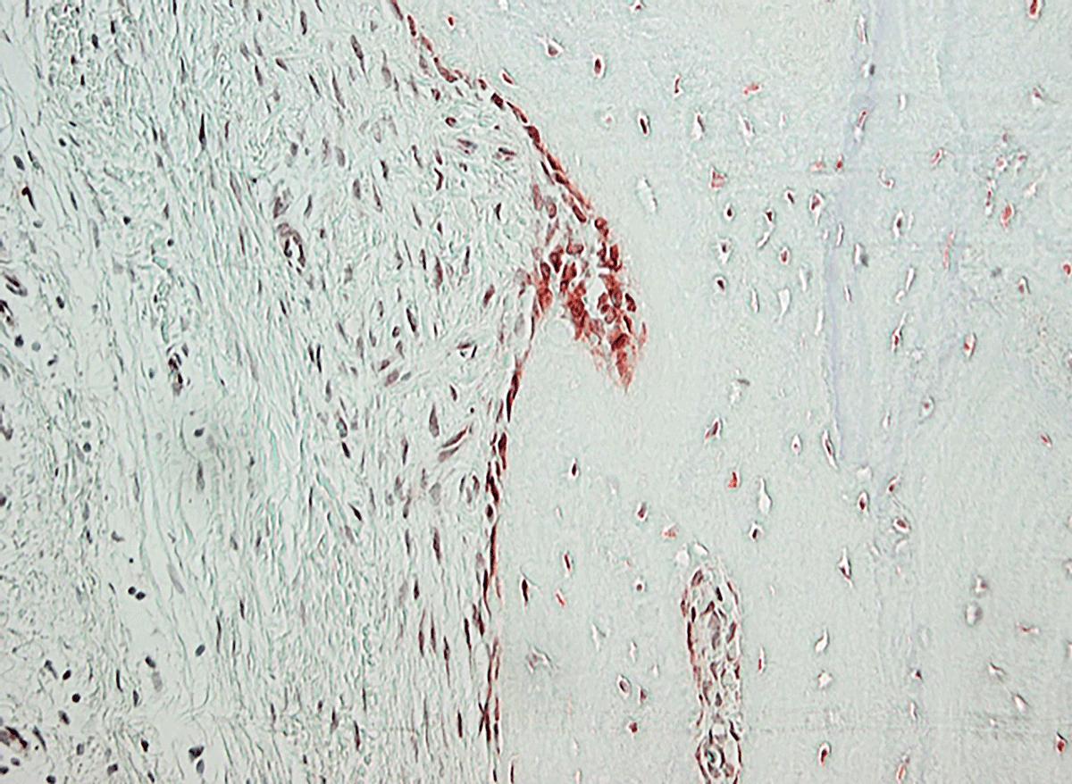 Entzündetes Kniegewebe eines RA-Patienten: Unter dem Mikroskop wurden bestimmte Dopamin-Rezeptoren (rot) sichtbar gemacht. Links befinden sich die Zellen der Gelenkschmiere (Synovia), die im Zuge einer rheumatoiden Arthritis Knorpel und Knochen (rechts) angreifen.